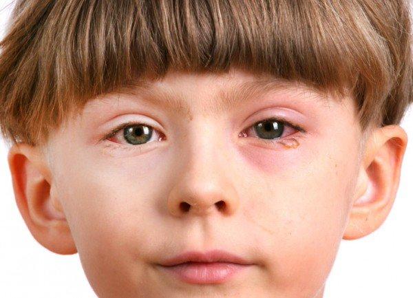 Nhiễm khuẩn mắt gây cảm giác đau nhức, đỏ mắt, chảy nước mắt